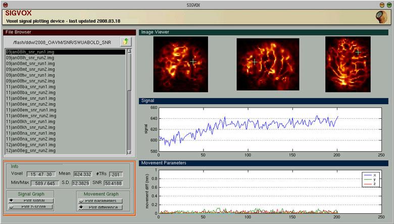 Noise Detection - BrainImagingCenter